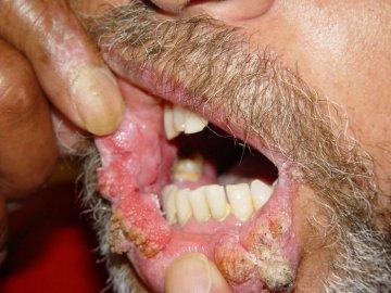 aids dent lichenplanus genitalwarts