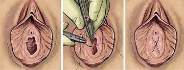 Vagina pic virgin pic congratulate, seems