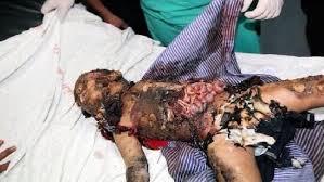 Child Burned Alive 03jpg